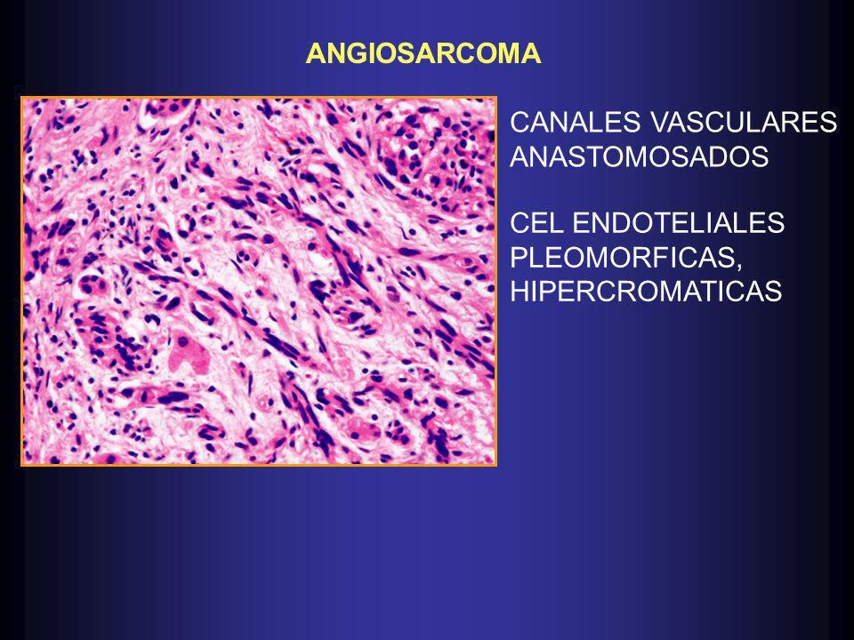 ANGIOSARCOMA CANALES VASCULARES ANASTOMOSADOS CEL ENDOTELIALES PLEOMORFICAS, HIPERCROMATICAS