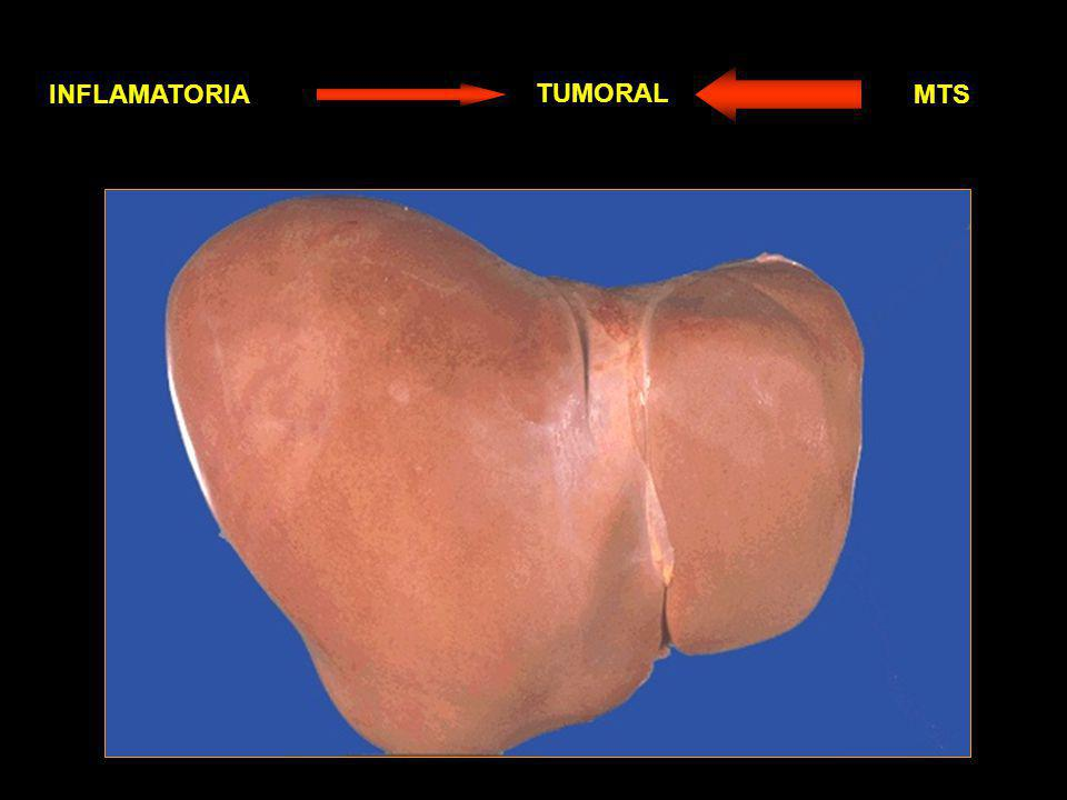 INFLAMATORIA TUMORAL MTS