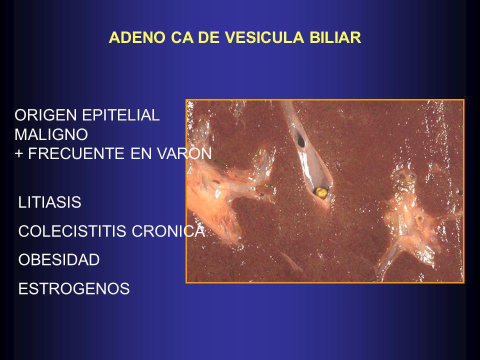 ADENO CA DE VESICULA BILIAR