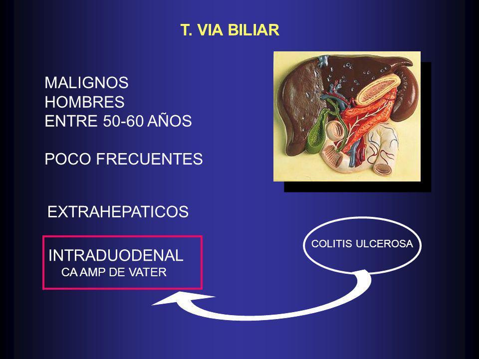 T. VIA BILIAR MALIGNOS HOMBRES ENTRE 50-60 AÑOS POCO FRECUENTES