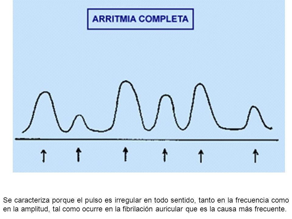 Se caracteriza porque el pulso es irregular en todo sentido, tanto en la frecuencia como en la amplitud, tal como ocurre en la fibrilación auricular que es la causa más frecuente.