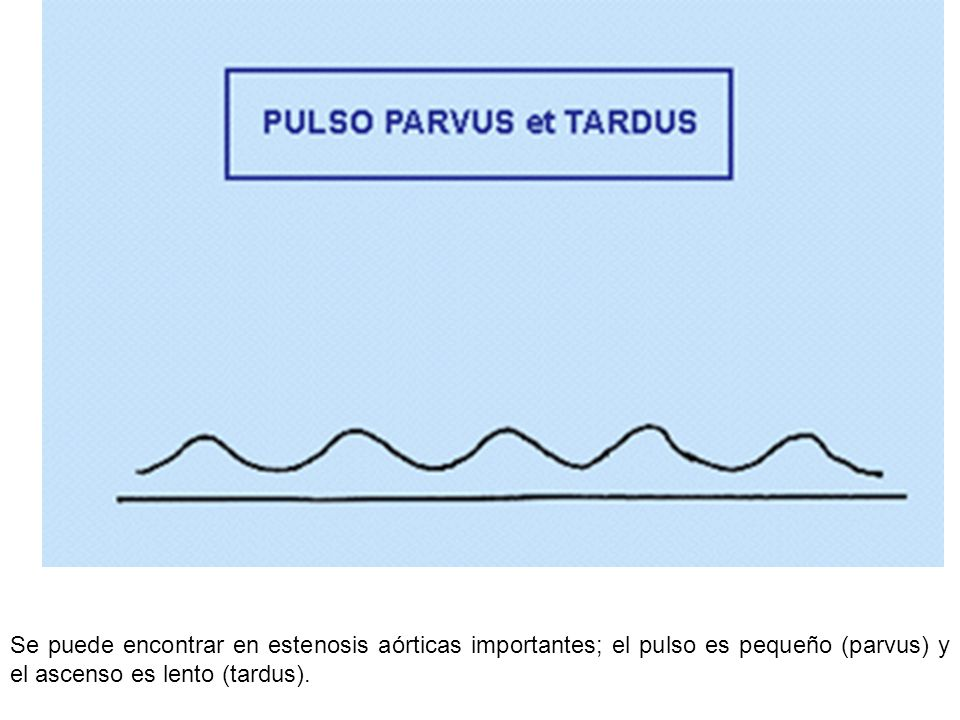 Se puede encontrar en estenosis aórticas importantes; el pulso es pequeño (parvus) y el ascenso es lento (tardus).