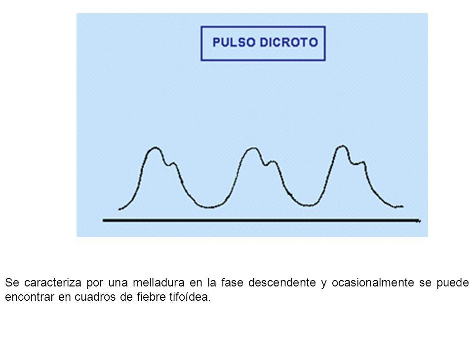 Se caracteriza por una melladura en la fase descendente y ocasionalmente se puede encontrar en cuadros de fiebre tifoídea.