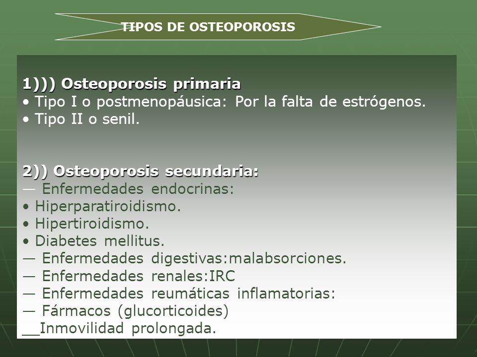 1))) Osteoporosis primaria