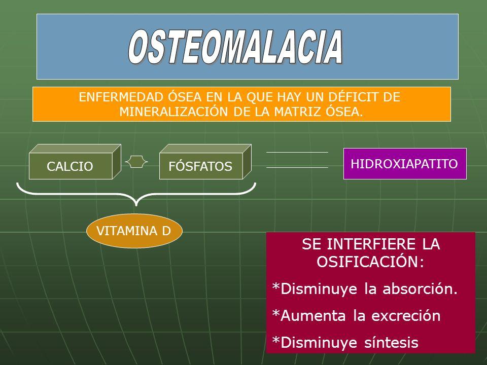 OSTEOMALACIA SE INTERFIERE LA OSIFICACIÓN: *Disminuye la absorción.