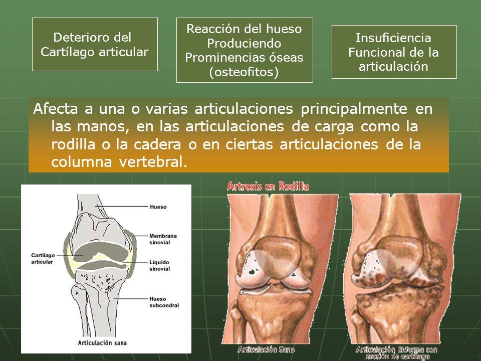 Deterioro del Cartílago articular. Reacción del hueso. Produciendo. Prominencias óseas. (osteofitos)