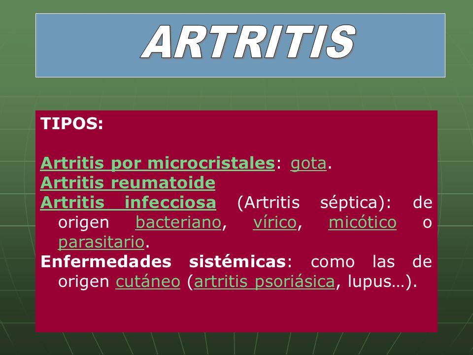 ARTRITIS TIPOS: Artritis por microcristales: gota. Artritis reumatoide