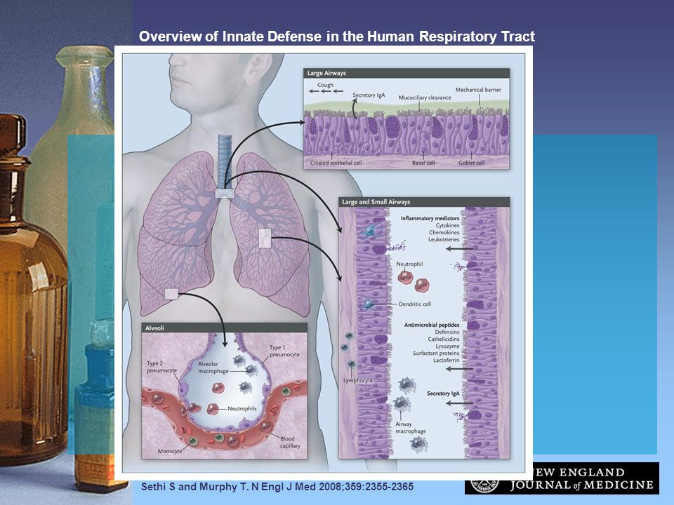 Overview of Innate Defense in the Human Respiratory Tract