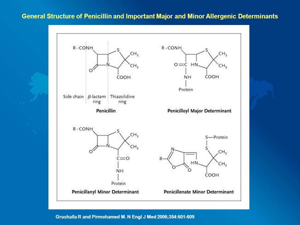 General Structure of Penicillin and Important Major and Minor Allergenic Determinants