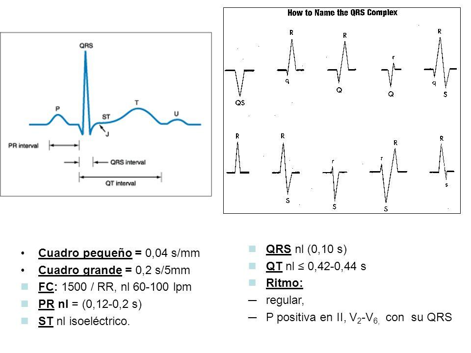 QRS nl (0,10 s) QT nl ≤ 0,42-0,44 s. Ritmo: regular, P positiva en II, V2-V6, con su QRS. Cuadro pequeño = 0,04 s/mm.