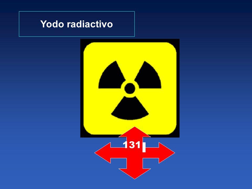 Yodo radiactivo 131I