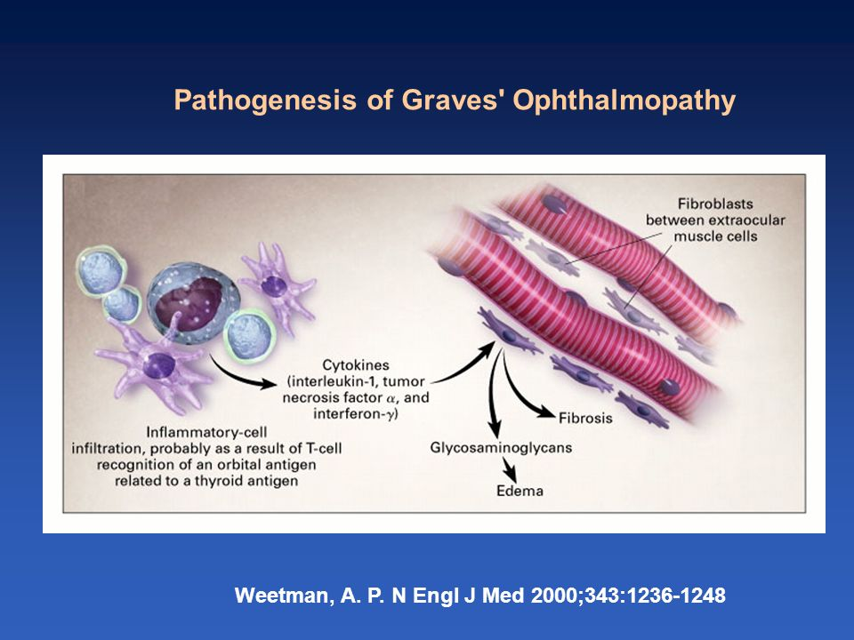 Pathogenesis of Graves Ophthalmopathy
