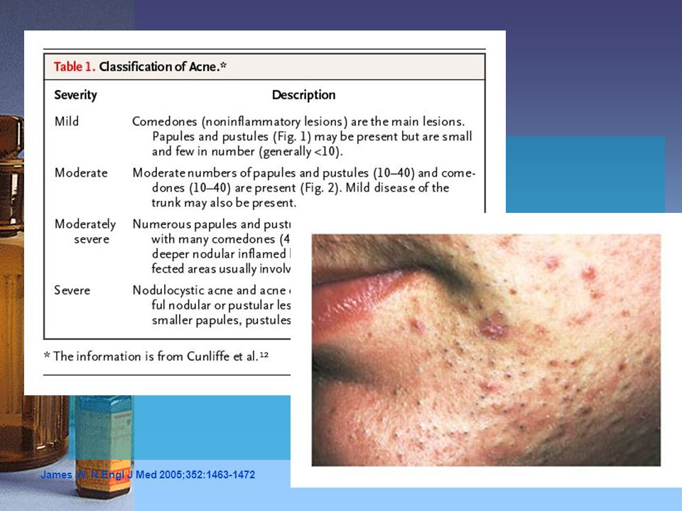 Mild Acne Figure 1. Mild Acne. Multiple open and closed comedones are present, with few inflammatory papules.