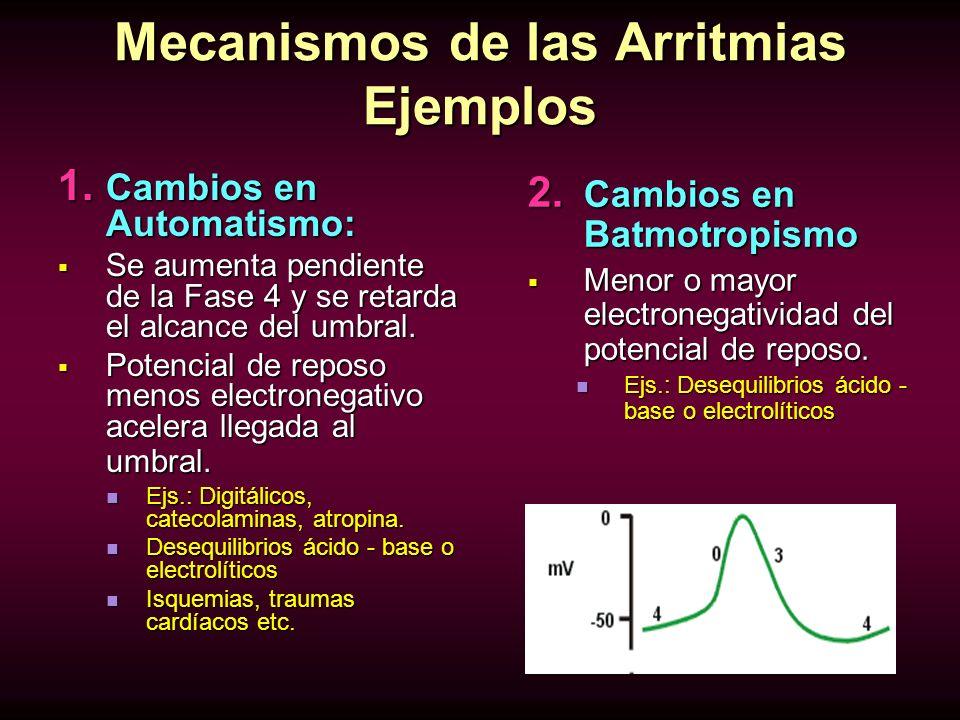 Mecanismos de las Arritmias Ejemplos
