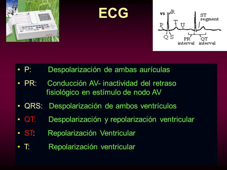 ECG P: Despolarización de ambas aurículas