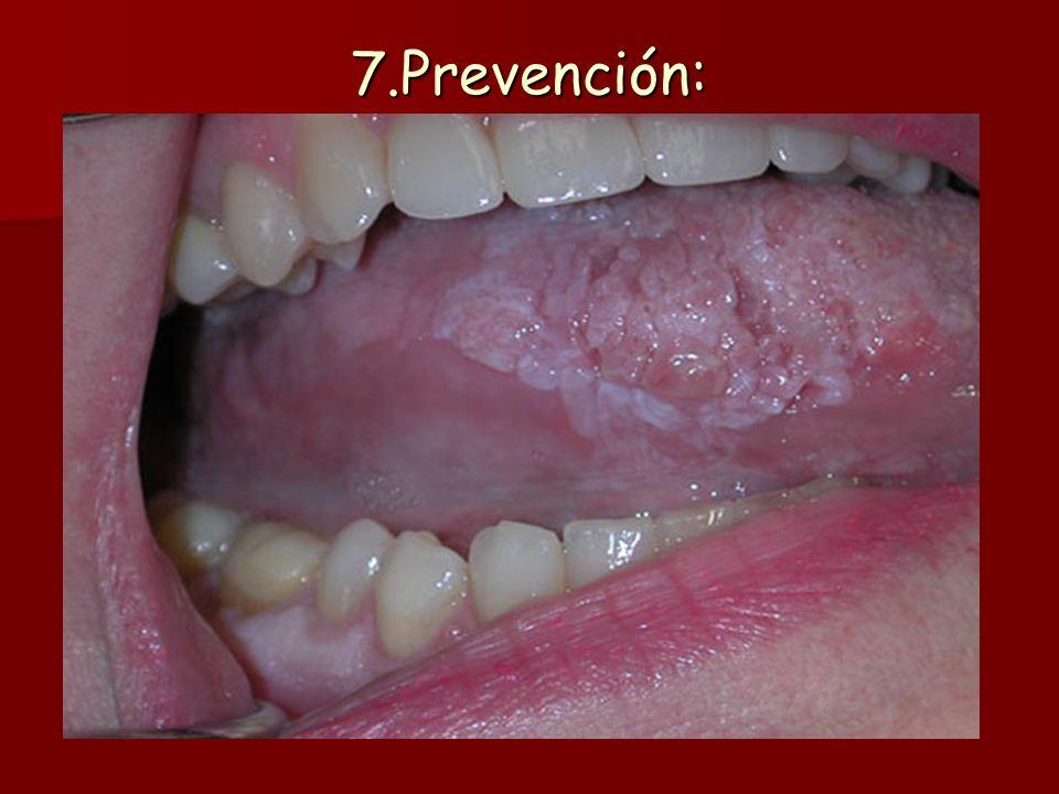 7.Prevención: