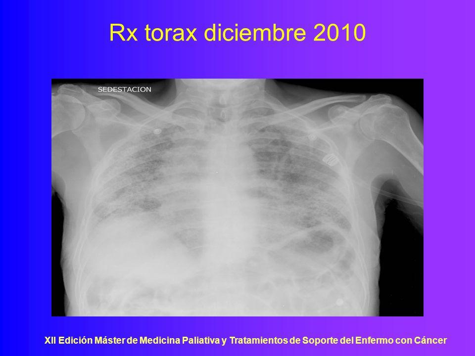 Rx torax diciembre 2010 XII Edición Máster de Medicina Paliativa y Tratamientos de Soporte del Enfermo con Cáncer.