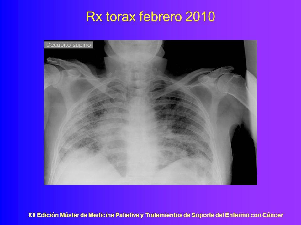 Rx torax febrero 2010XII Edición Máster de Medicina Paliativa y Tratamientos de Soporte del Enfermo con Cáncer.