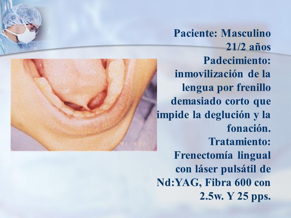 Paciente: Masculino 21/2 años Padecimiento: inmovilización de la lengua por frenillo demasiado corto que impide la deglución y la fonación.