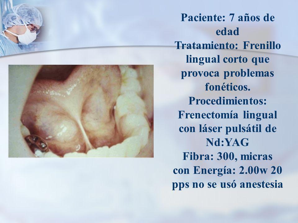 Paciente: 7 años de edad Tratamiento: Frenillo lingual corto que provoca problemas fonéticos.