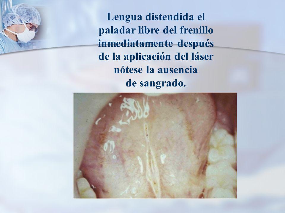Lengua distendida el paladar libre del frenillo inmediatamente después de la aplicación del láser nótese la ausencia de sangrado.