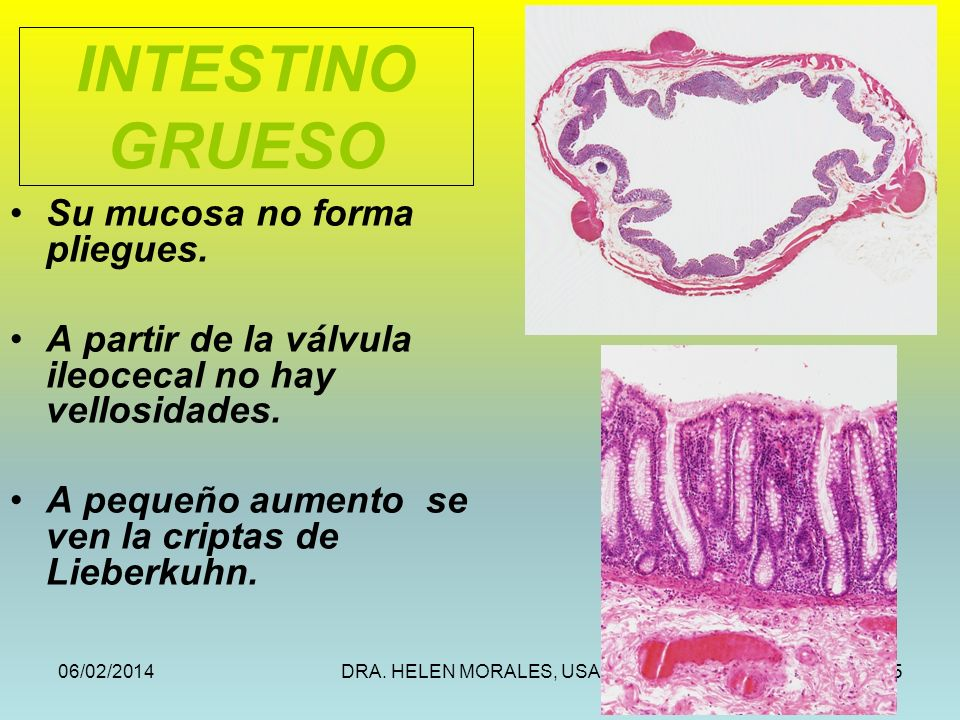 INTESTINO GRUESO Su mucosa no forma pliegues.