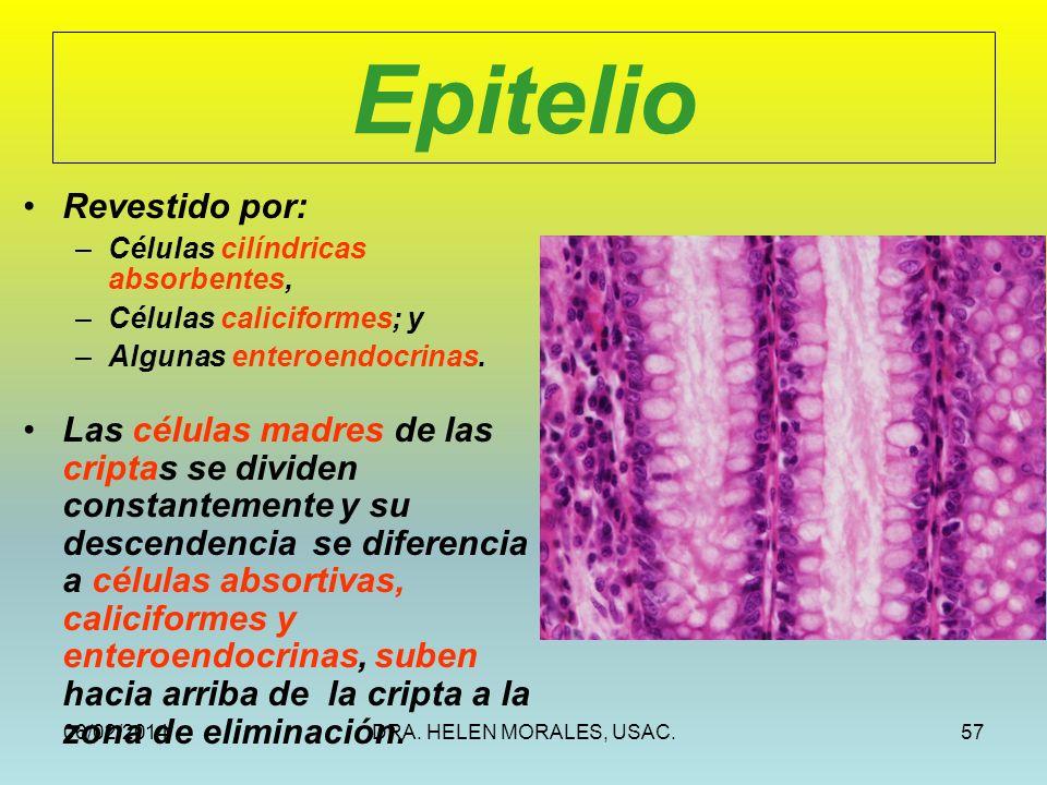 Epitelio Revestido por: