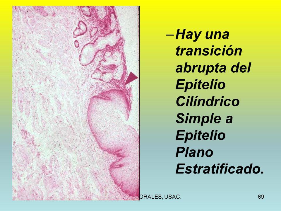 Hay una transición abrupta del Epitelio Cilíndrico Simple a Epitelio Plano Estratificado.