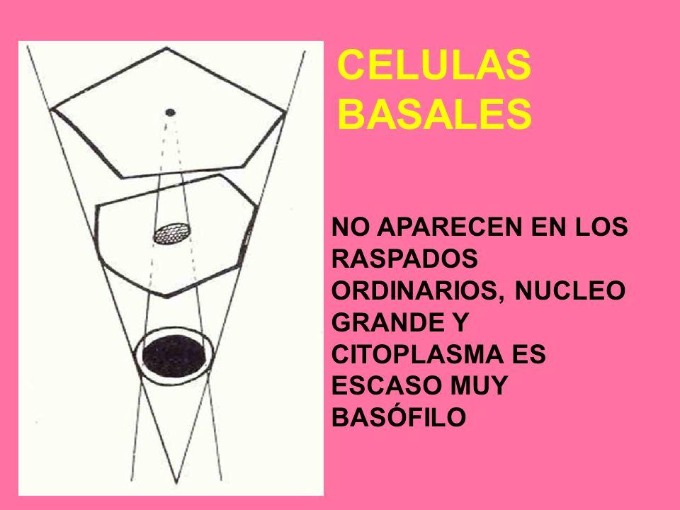 CELULAS BASALES NO APARECEN EN LOS RASPADOS ORDINARIOS, NUCLEO GRANDE Y CITOPLASMA ES ESCASO MUY BASÓFILO.