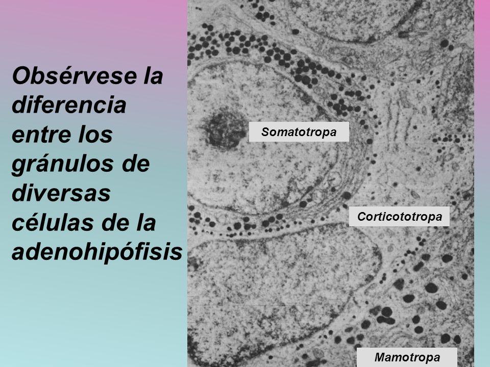 Obsérvese la diferencia entre los gránulos de diversas células de la adenohipófisis