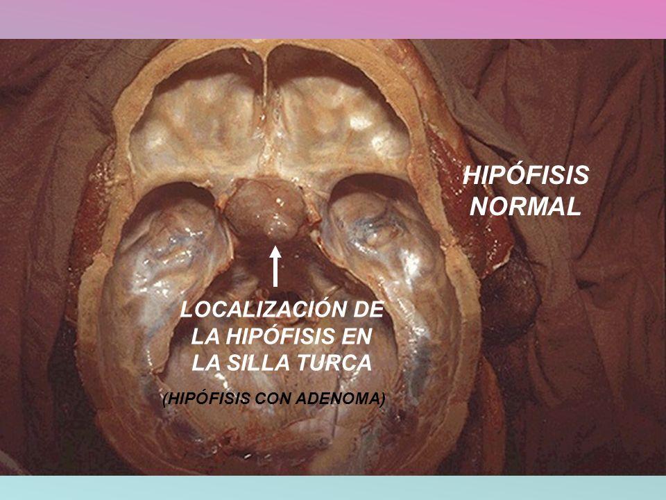 LOCALIZACIÓN DE LA HIPÓFISIS EN LA SILLA TURCA