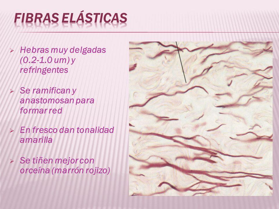 Fibras elásticas Hebras muy delgadas (0.2-1.0 um) y refringentes