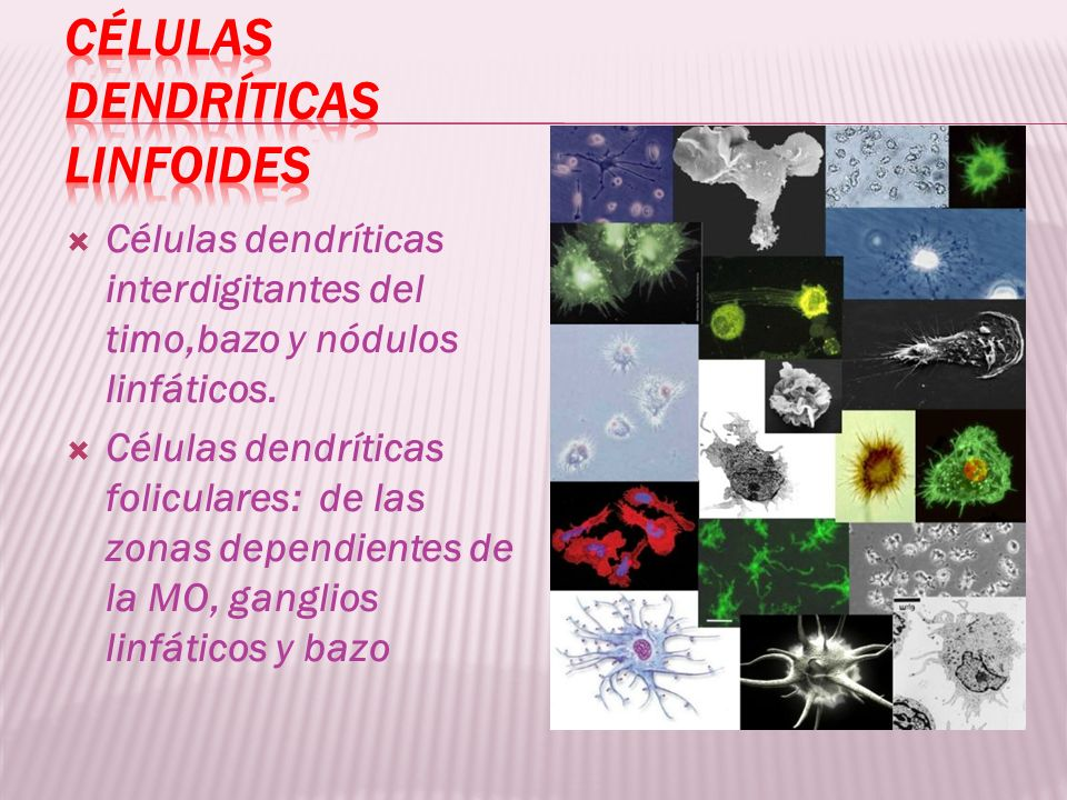 Células dendríticas linfoides