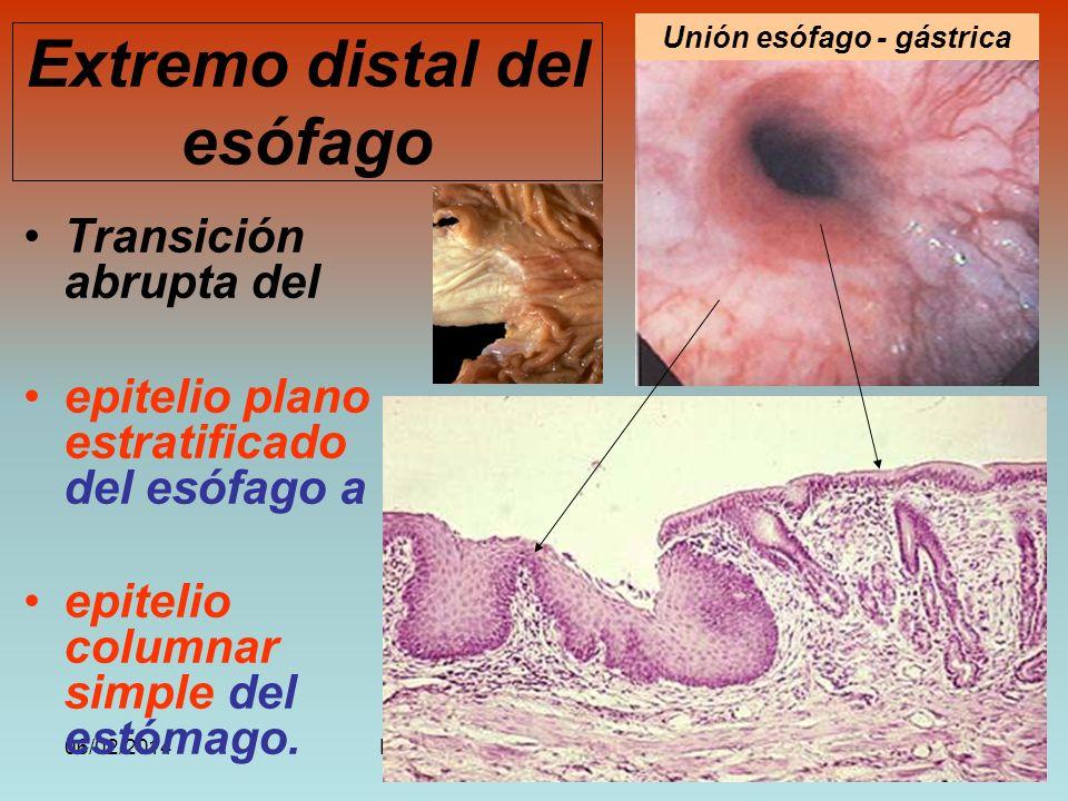 Extremo distal del esófago