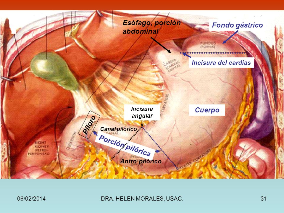 Esófago, porción abdominal Fondo gástrico