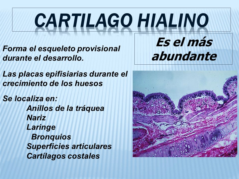 CARTILAGO HIALINO Es el más abundante
