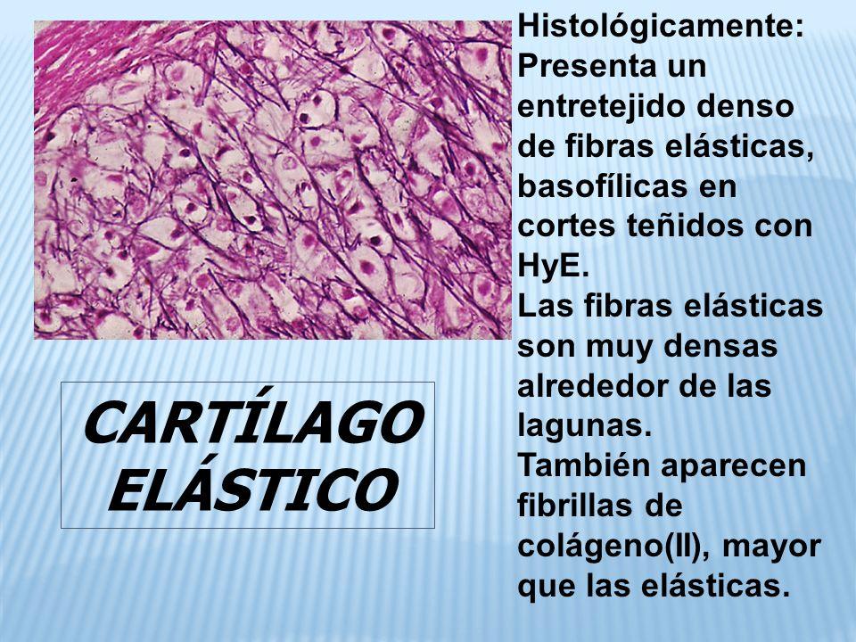CARTÍLAGO ELÁSTICO Histológicamente: