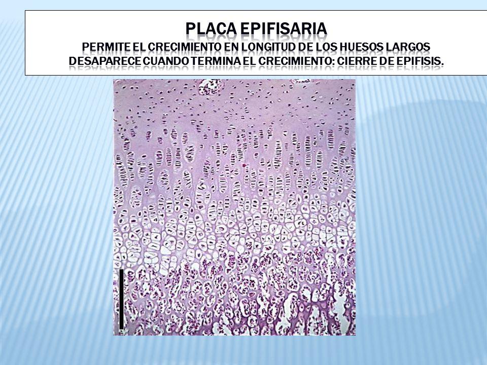 PLACA EPIFISARIA Permite el crecimiento en longitud de los huesos largos Desaparece cuando termina el crecimiento: CIERRE DE EPIFISIS.