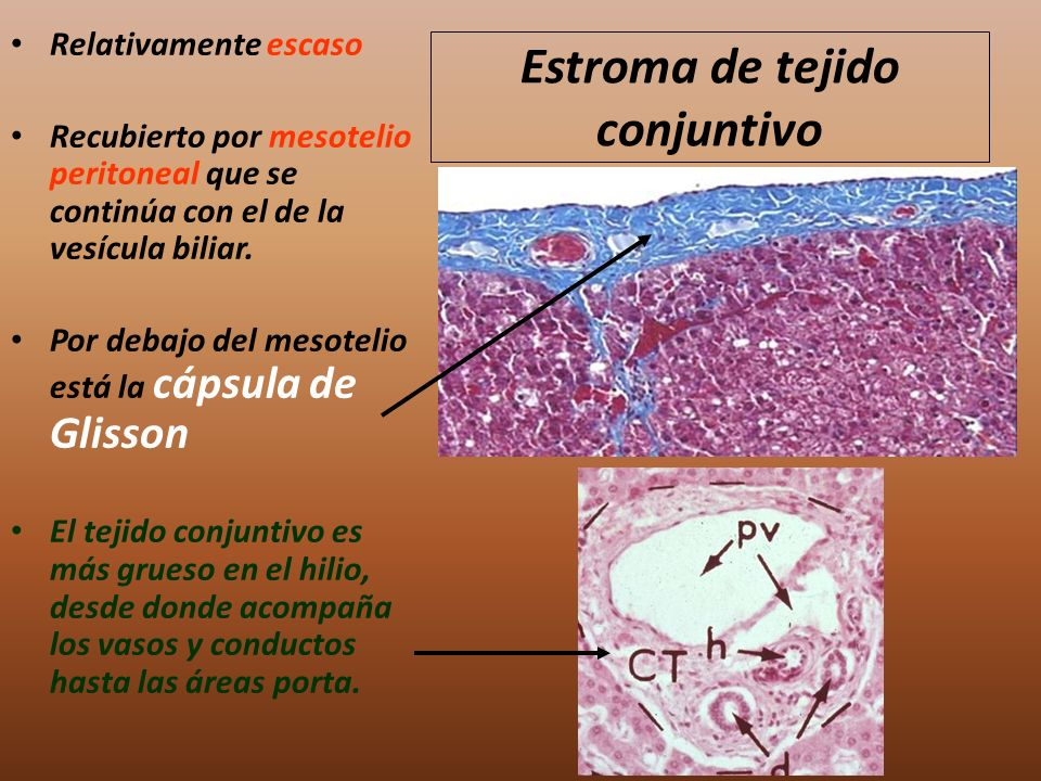 Estroma de tejido conjuntivo