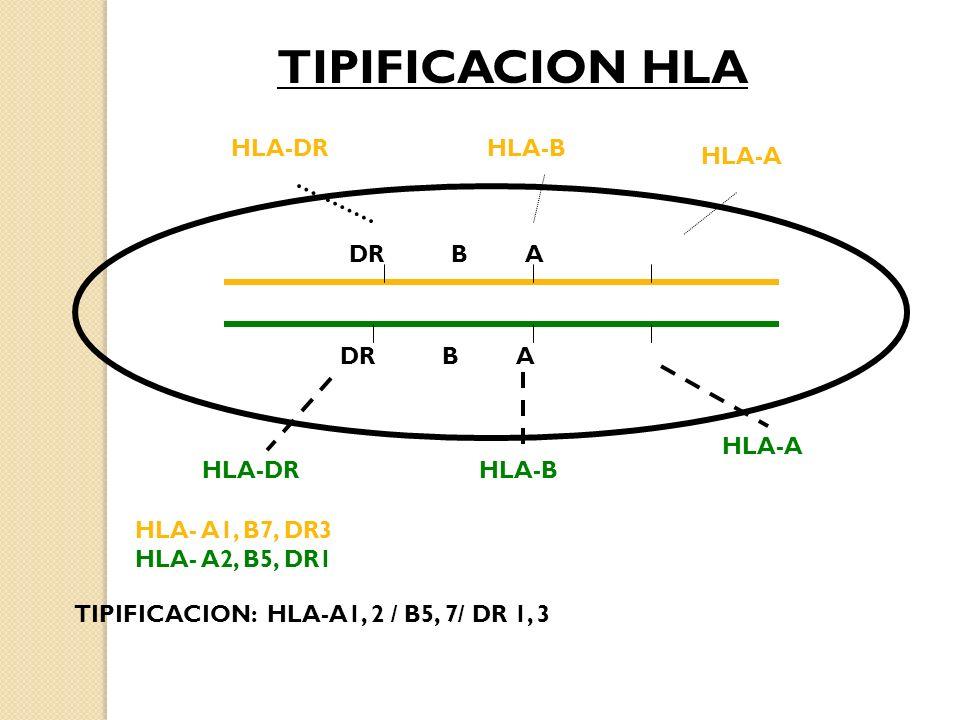 TIPIFICACION HLA HLA-DR HLA-B HLA-A DR B A DR B A HLA-A HLA-DR HLA-B