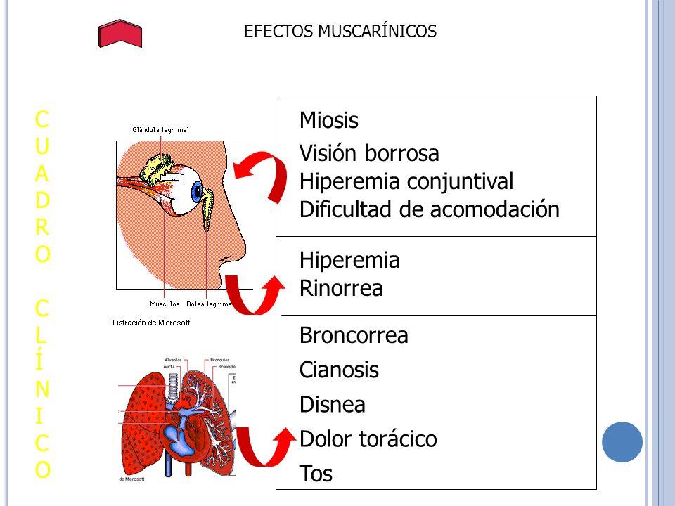 Hiperemia conjuntival Dificultad de acomodación