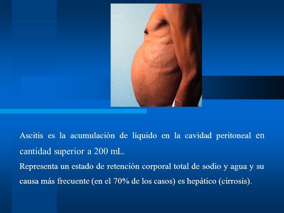 Ascitis es la acumulación de líquido en la cavidad peritoneal en cantidad superior a 200 mL.
