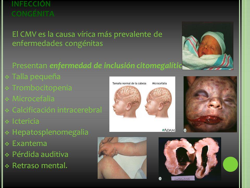 INFECCIÓN CONGÉNITA El CMV es la causa vírica más prevalente de enfermedades congénitas. Presentan enfermedad de inclusión citomegalítica: