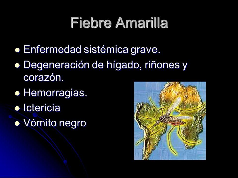 Fiebre Amarilla Enfermedad sistémica grave.