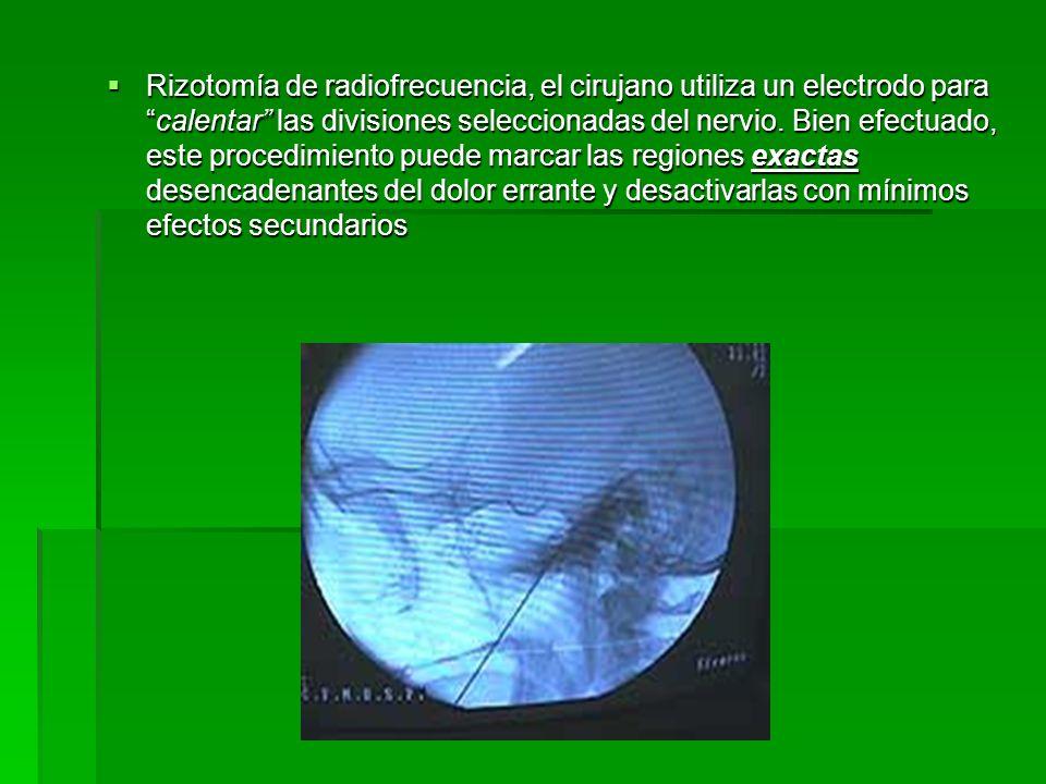 Rizotomía de radiofrecuencia, el cirujano utiliza un electrodo para calentar las divisiones seleccionadas del nervio.