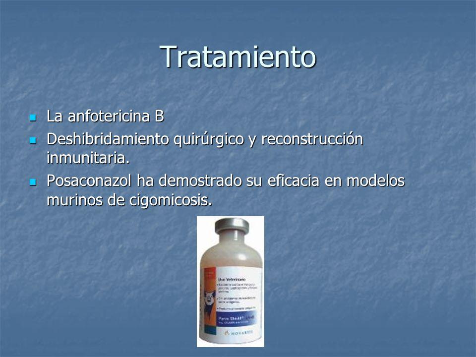 Tratamiento La anfotericina B