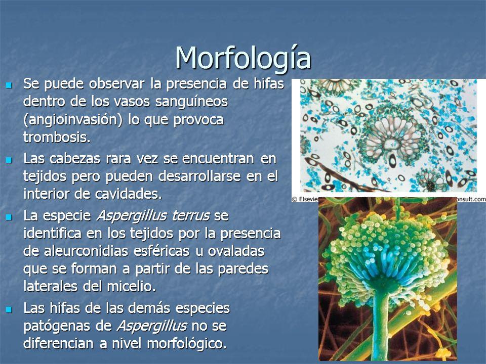 MorfologíaSe puede observar la presencia de hifas dentro de los vasos sanguíneos (angioinvasión) lo que provoca trombosis.