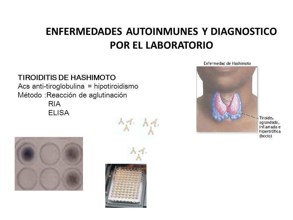 ENFERMEDADES AUTOINMUNES Y DIAGNOSTICO POR EL LABORATORIO