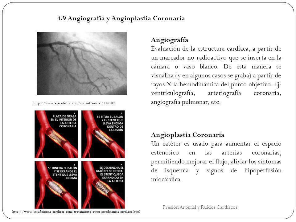 4.9 Angiografía y Angioplastia Coronaria