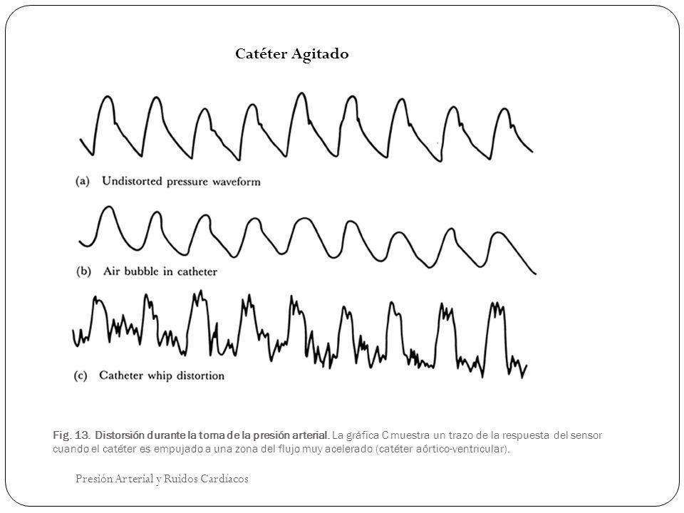 Catéter Agitado Presión Arterial y Ruidos Cardíacos